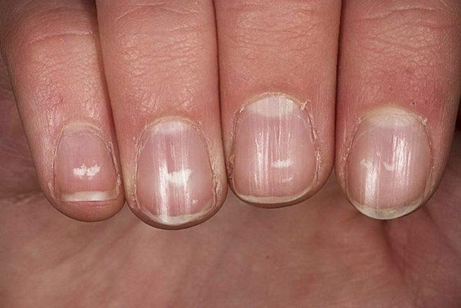 Белые точки на ногтях и народные приметы