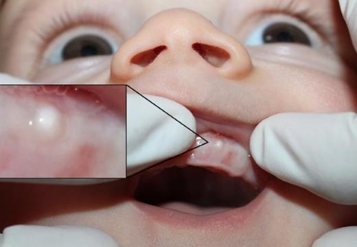 точка на десне у младенца