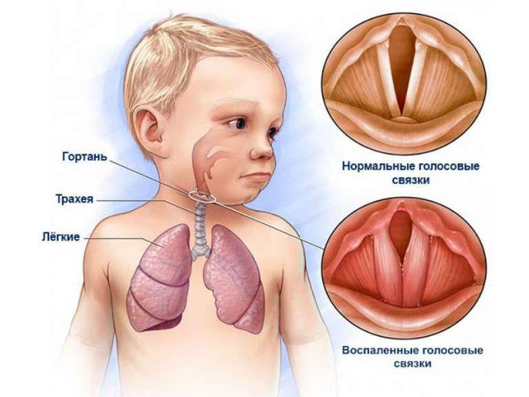 Ларинготрахеит у детей, симптомы и лечение