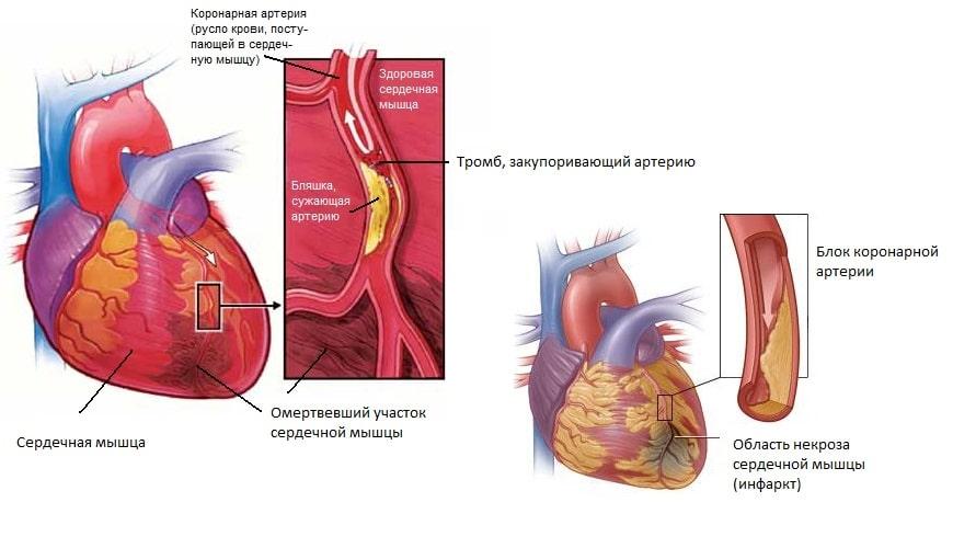 Как выглядит инфаркт