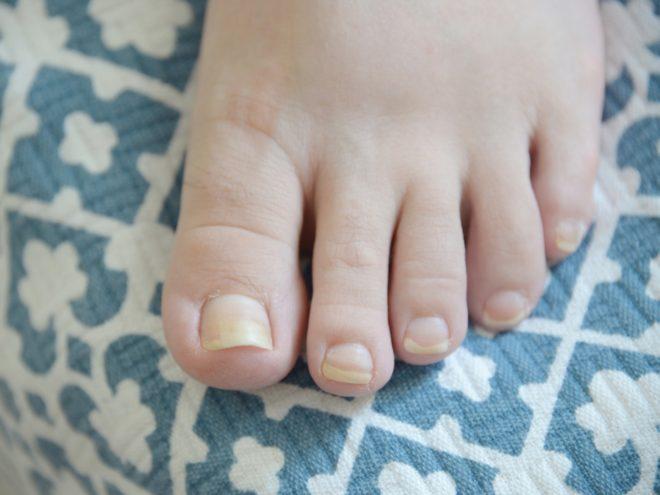 Что делать, если ногти желтеют на ногах