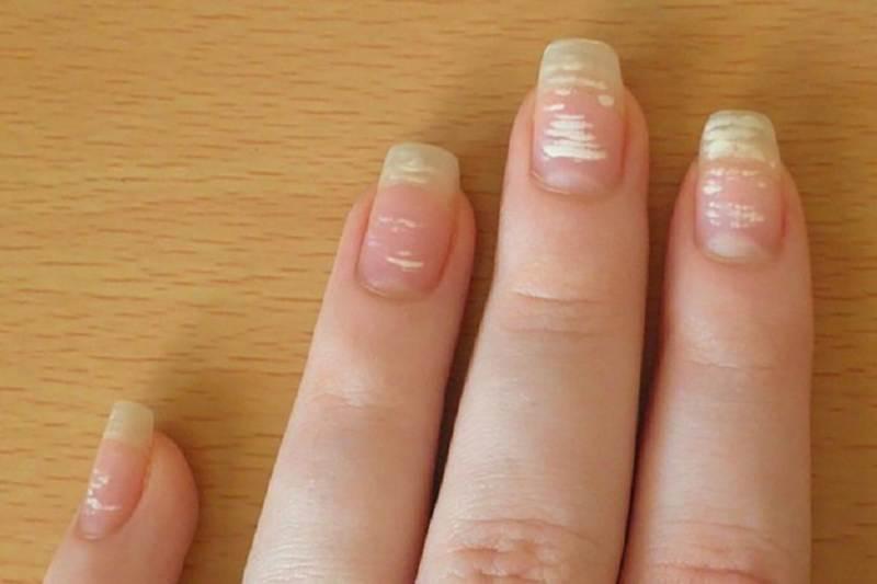 Немного интересных фактов о полосках на ногтях