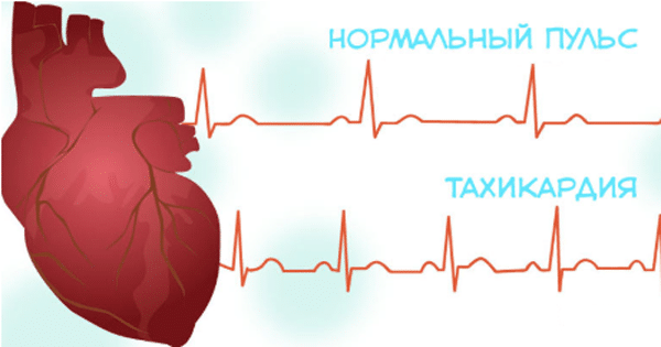 Отличие тахикардии и нормального пульса