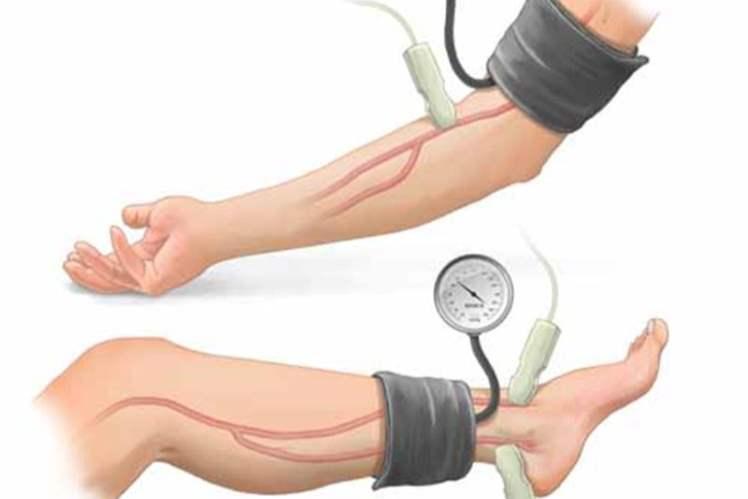 Измерение АД на руках и ногах