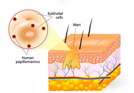 Появление бородавки в слоях кожи