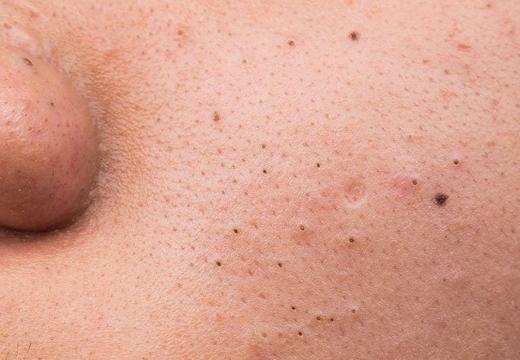 черные точки на щеке