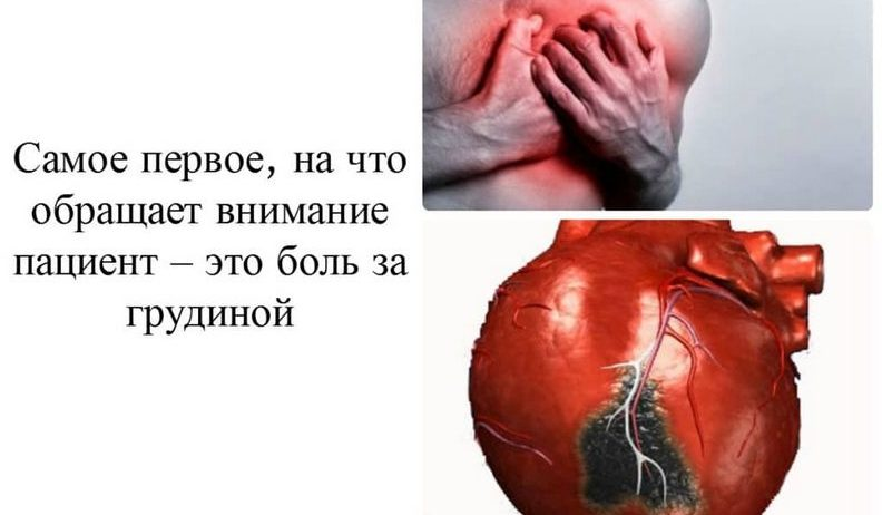 Боль в груди при инфаркте