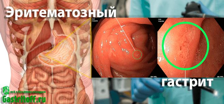 Эритематозный гастрит желудка на снимках ФГДС