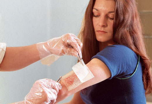 обработка раны