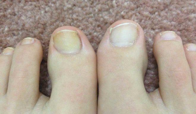6 причин появления желтизны ногтей