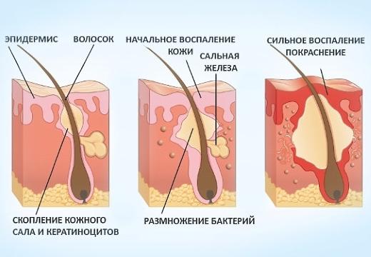 схема фурункулез