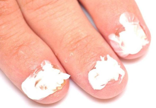 Крем на ногтях