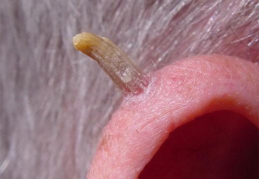 Кератома на ухе