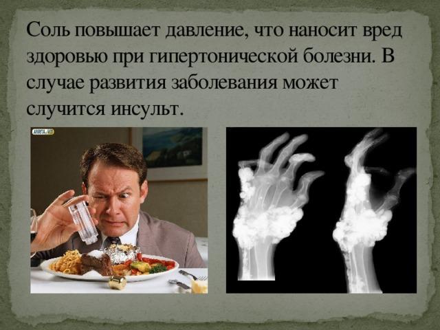 Соль вызывает инсульт