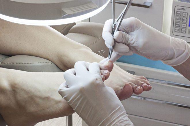 Вросший ноготь на большом пальце как лечитьхирургическим путём