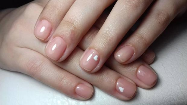 Онихолизис ногтей как лечить