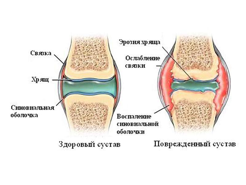 Деформированный артроз стопы лечение