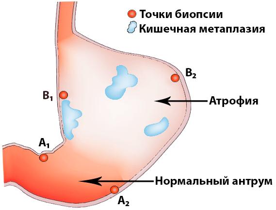 Аутоиммунный гастрит в желудке и точки биопсии