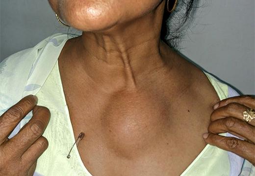 жировик на грудной клетке