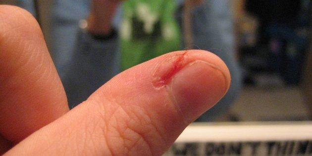 Нарыв на пальце руки лечение