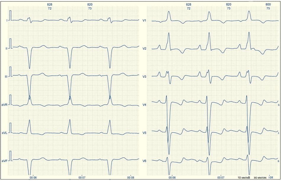 Кардиограмма сердца