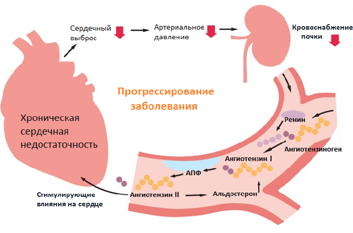Развитие гипертонии
