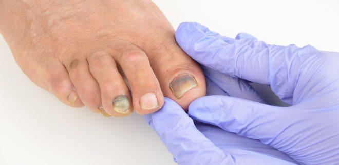 Причины панариции на пальцах ног