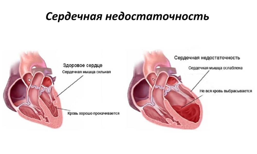 Слабость сердечной мышцы