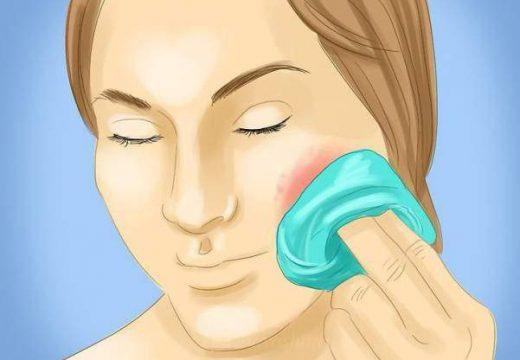 Причины и симптомы фурункула с локализацией на щеке