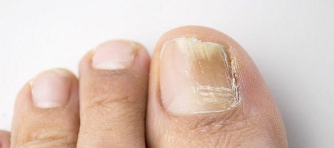 Дополнительные советы по лечению грибка ногтей
