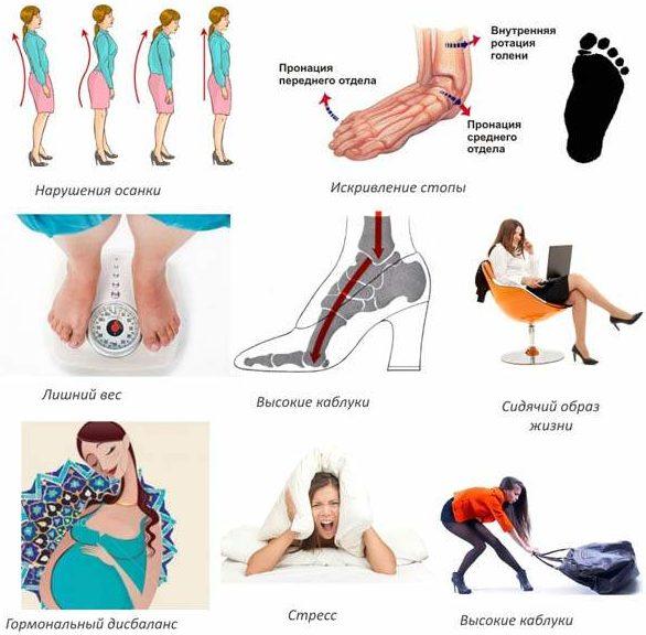 Шейный остеохондроз и артериальное давление: могут ли быть ...