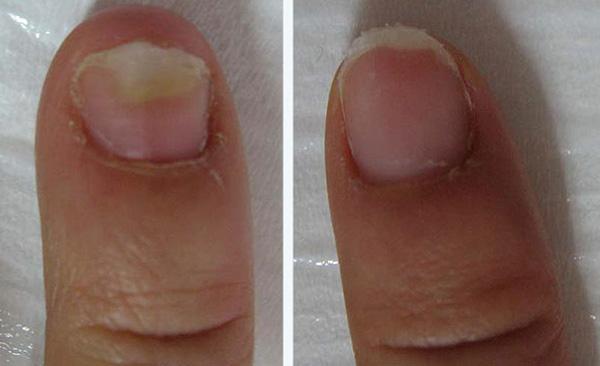 грибок на руках, до и после
