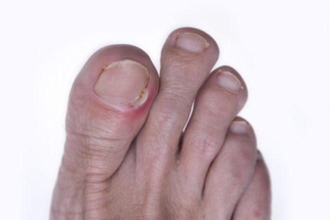 8 видов панариция на ноге