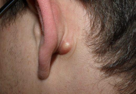 фурункул за ухом