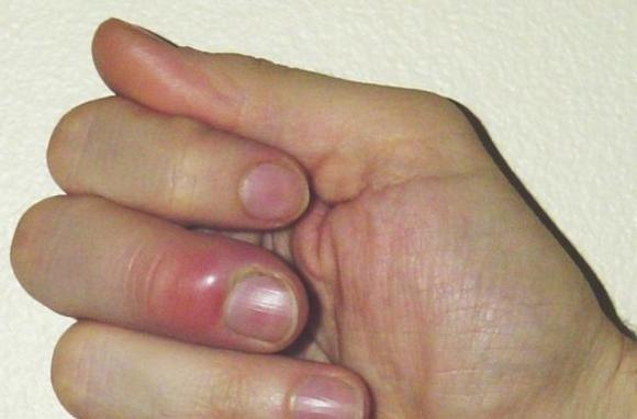 Нагноение на пальце – причины развития
