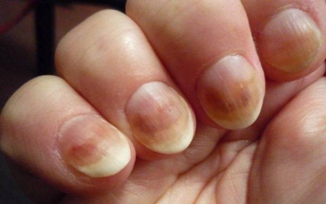 Каковы самые явные симптомы заболевания ногтей