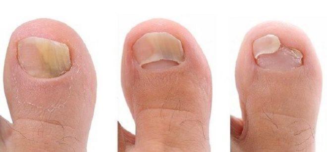 Лечение ногтей средствами традиционной и народной медицины