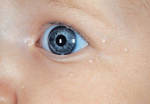милиумы возле глаз младенца