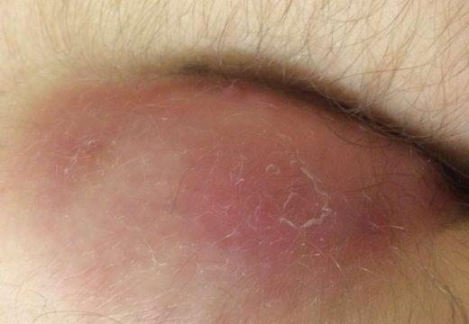Как распознать подкожный фурункул: симптомы и лечение