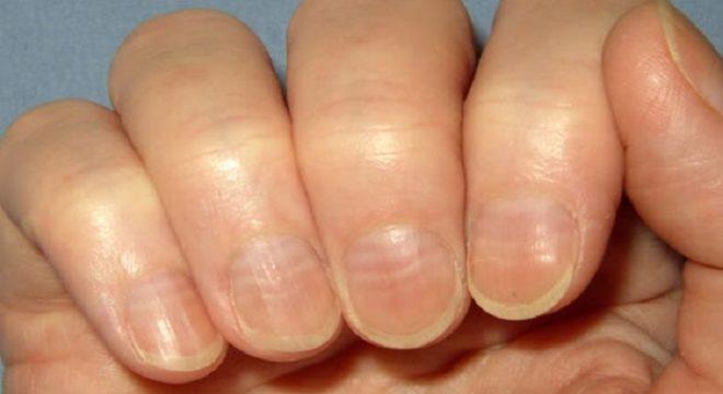 волнистости ногтей