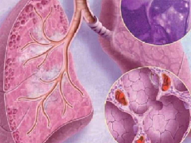 Саркоидоз легких, симптомы и лечение