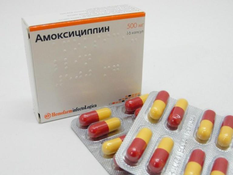 Пневмония, симптомы у детей с температурой и кашлем
