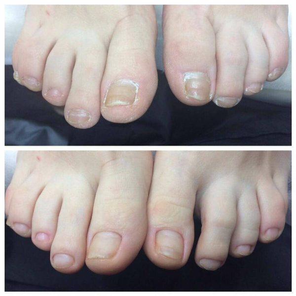 Капли от грибка ногтей на ногах название, особенности, стоимость, применение