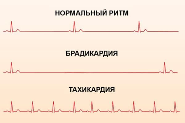 Тахикардия и брадикардия