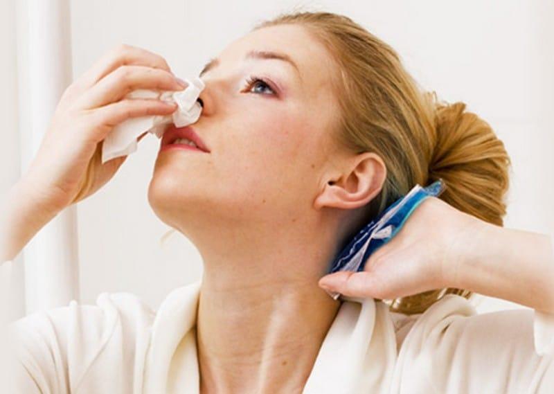 Как остановить кровь из носа при гипертензии
