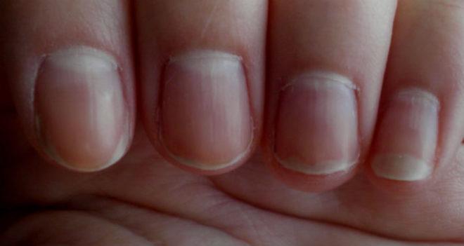на ногтях вертикальные полоски
