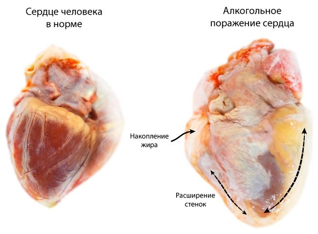 Сердце человека при употреблении алкоголя