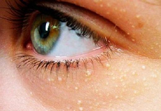 просянка возле глаз