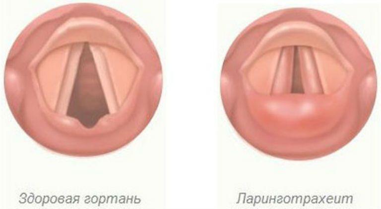 Ларинготрахеит, симптомы и лечение у взрослых