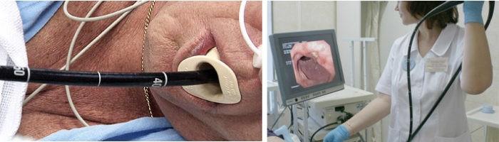 Мужчину врач проверяет эндоскопом картинка